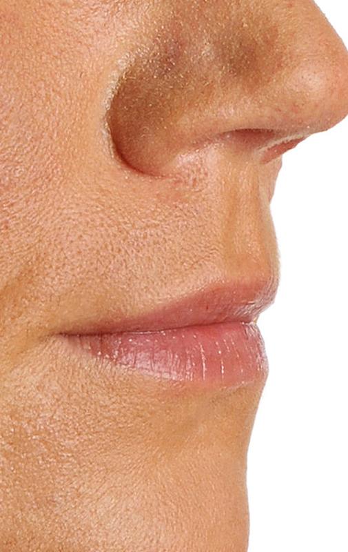 zabieg powiększania ust