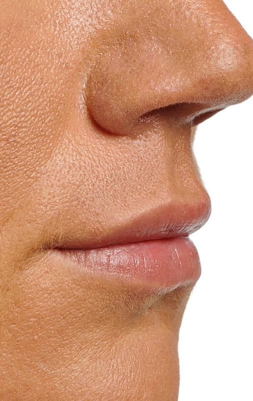 powiększanie ust kraków