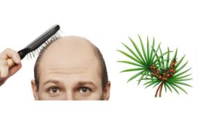 łysienie, wypadanie włosów