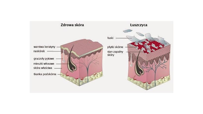 leczenie łuszczycy kraków
