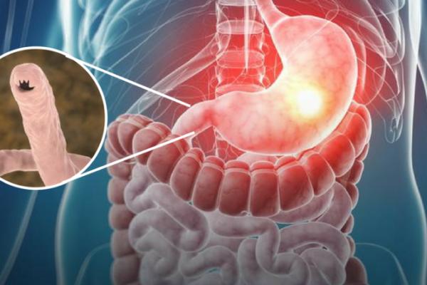 Ancylostoma duodenale – tęgoryjec dwunastnicy