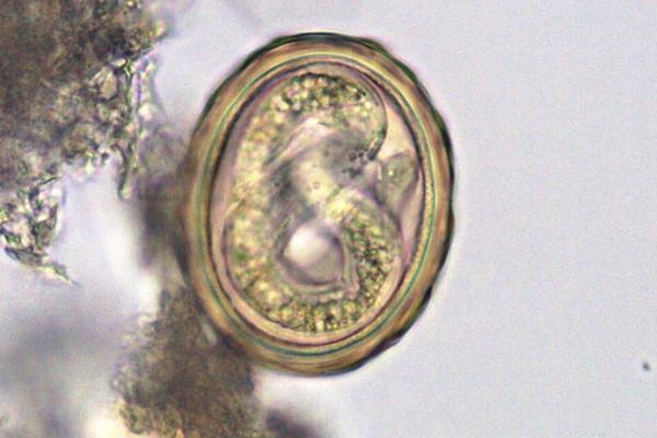 Ascaris lumbricoides – glista ludzka