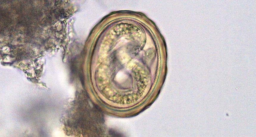 ascaris lumbricoides - glista ludzka - biorezonans kraków