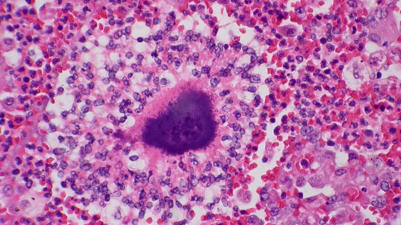 actinomyces - promieniowce - biorezonans kraków