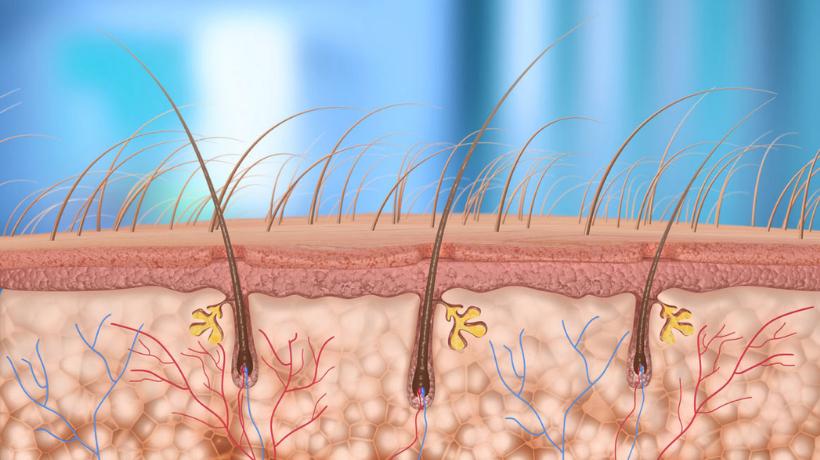 zapalenie mieszków włosowych trycholog